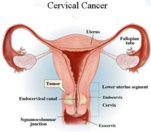 Cervical cancer: symptoms, causes and treatment