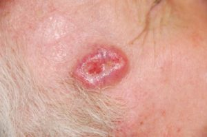 Skin Cancer: Symptoms, Causes and Treatment